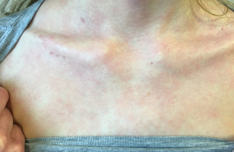 chest with severe atopic dermatitis