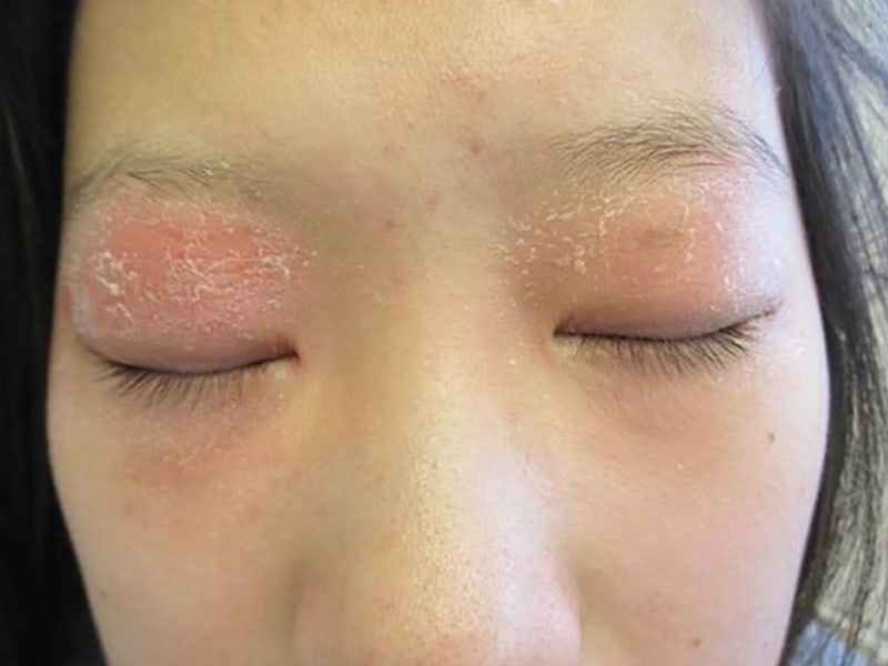 27-year-old female patient with moderate AD