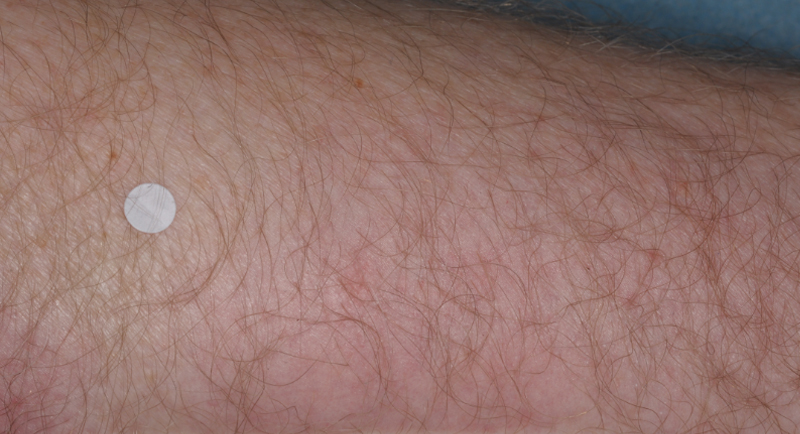 Close up of arm with reduced plaque psoriasis at week 4