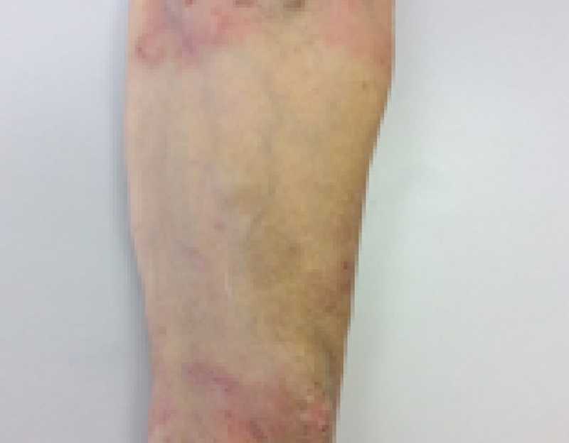 Close up of a leg of a female infected with dermatitis at week 4
