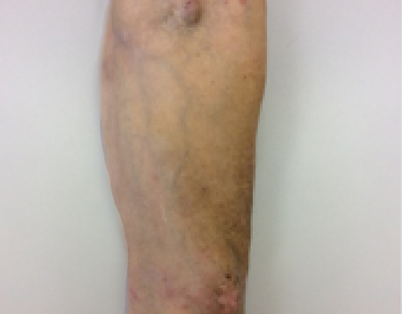 Close up of a leg of a female infected with dermatitis at week 0