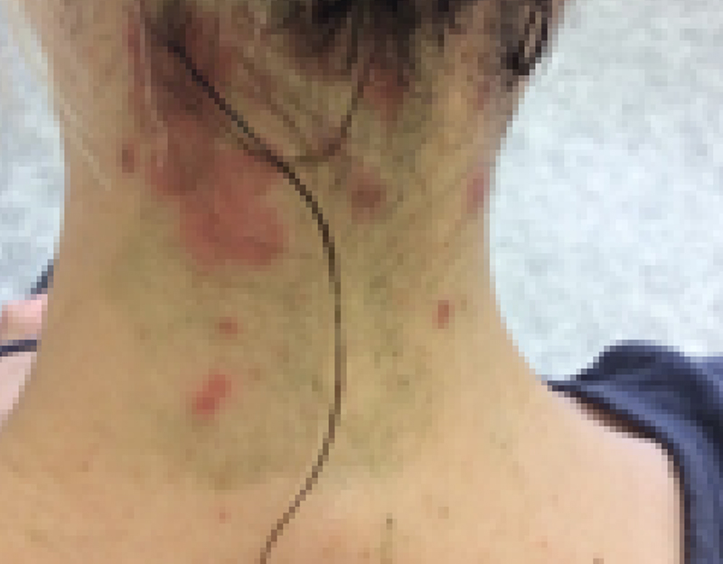 Close up of the neck of a female with infected dermatitis at week 0
