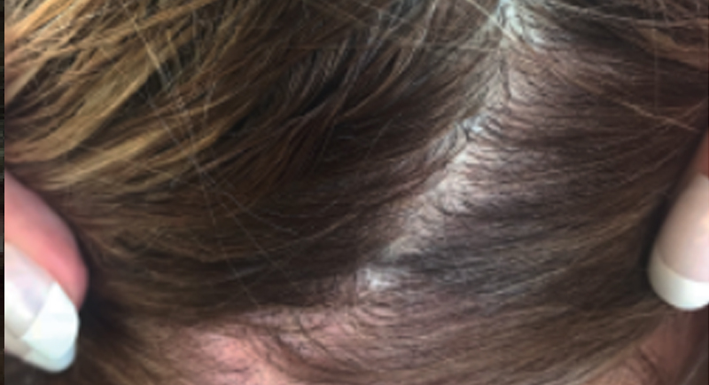 Close up of a female's scalp with reduced plaque psoriasis at week 4